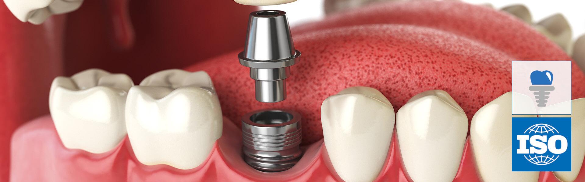 implantáty a chirurgické prvky